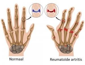 ergotherapie reuma
